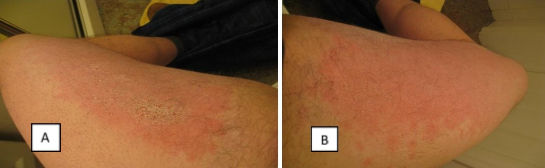 allergic contact dermatitis on inner thighs