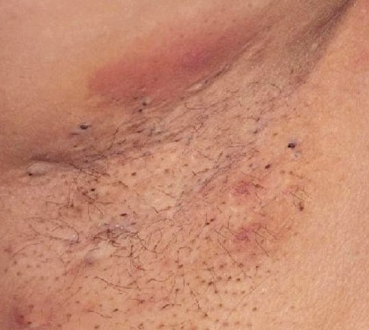rash on inner thighs pictures